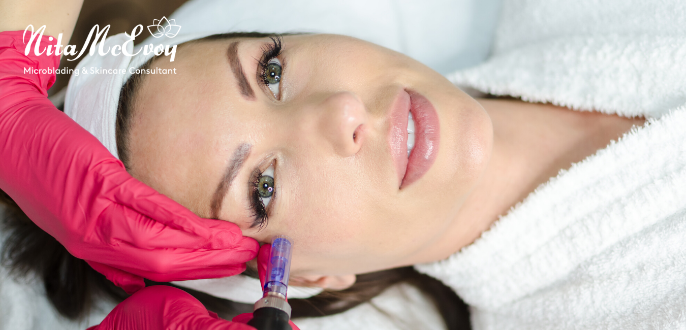 Microneedling is a great way to keep you looking young!